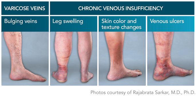 Varicose veins itching relief